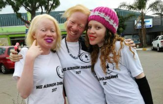 albinism_custom-39f5275b644ec6c2e8e50747599d5b8487d23e2f-s800-c85